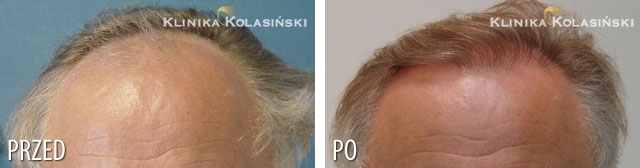 Pictures before and after: hair transplant - 1100 grafts