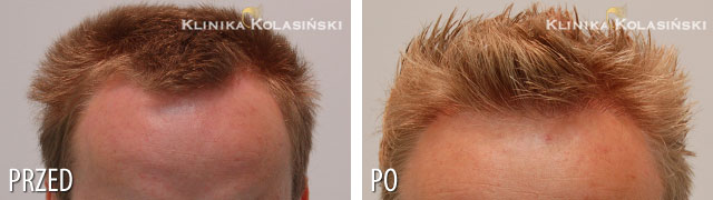 Pictures before and after: hair transplant - 1200 grafts