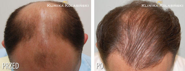 Pictures before and after: hair transplant - 1510 grafts