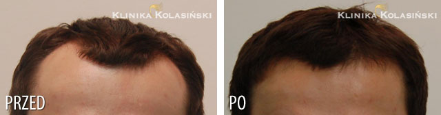 Pictures before and after: hair transplant - 1800 grafts