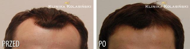 Bilder vorher und nachher: Haartransplantationen - 1800 grafts
