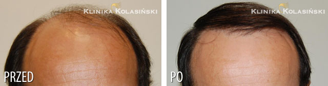 Pictures before and after: hair transplant - 2600 grafts