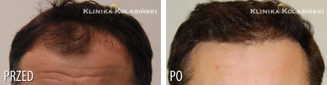 Pictures before and after: hair transplant - 2700 grafts