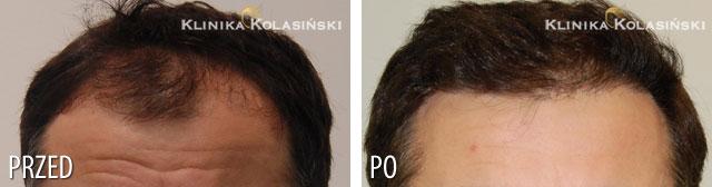 Bilder vorher und nachher: Haartransplantationen - 2700 grafts