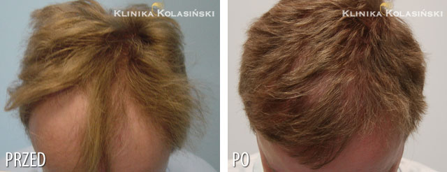 Pictures before and after: hair transplant - 2800 grafts