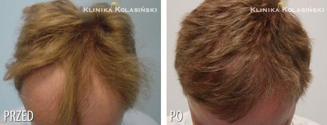 Bilder vorher und nachher: Haartransplantationen - 2800 grafts