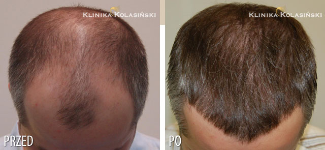 Pictures before and after: hair transplant - 3030 grafts