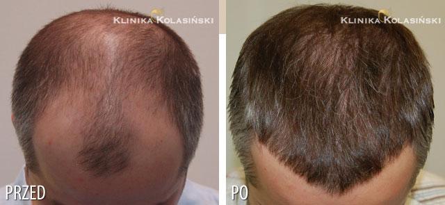 Bilder vorher und nachher: Haartransplantationen - 3030 grafts