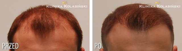 Pictures before and after: hair transplant - 3050 grafts