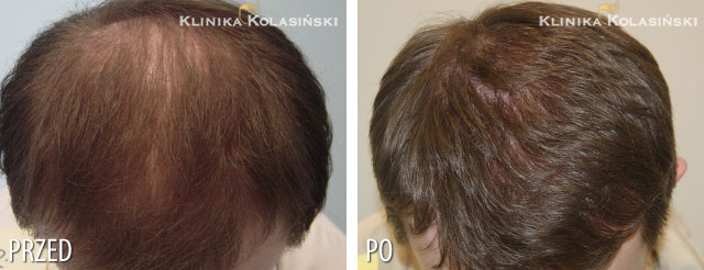 Pictures before and after: hair transplant - 3800 grafts
