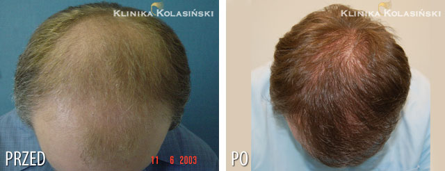 Pictures before and after: hair transplant - 4360 grafts
