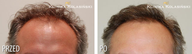 Pictures before and after: hair transplant - 4450 grafts