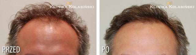 Bilder vorher und nachher: Haartransplantationen - 4450 grafts