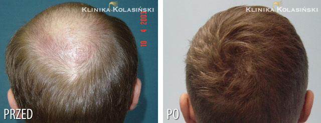 Pictures before and after: hair transplant - 5150 grafts