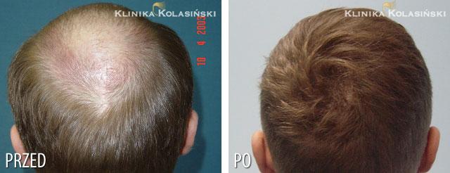 Bilder vorher und nachher: Haartransplantationen - 5150 grafts