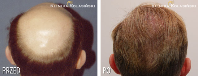 Pictures before and after: hair transplant - 5230 grafts