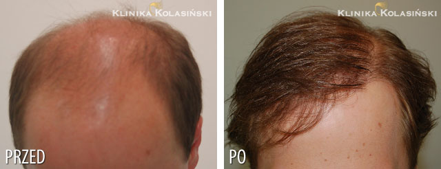 Pictures before and after: hair transplant - 5300 grafts