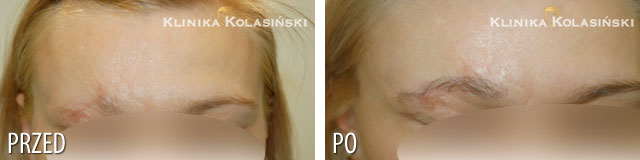 Pictures before and after: Eyebrow reconstruction