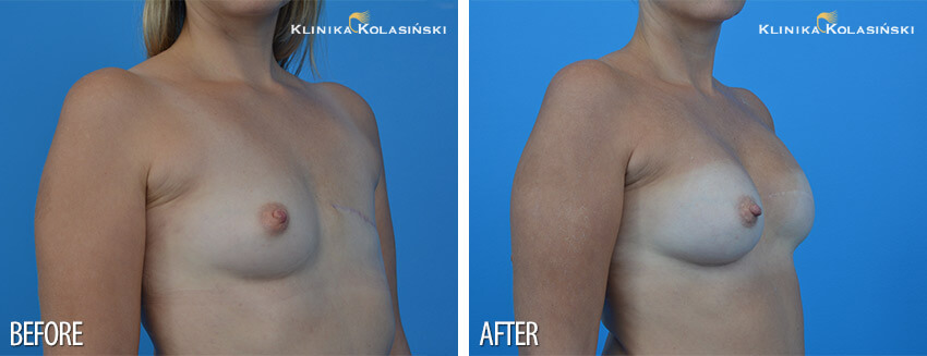 Breast reconstruction- Klinika Kolasiński
