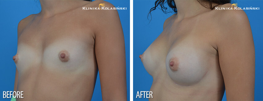 Correction of atypical breasts - Klinika Kolasiński