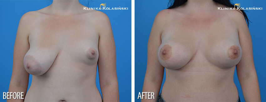 Tubular breasts augmentation - Klinika Kolasiński